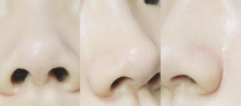 鼻の黒ずみが綺麗に消えた!?一回使えば解る噂の〇〇がすごい!